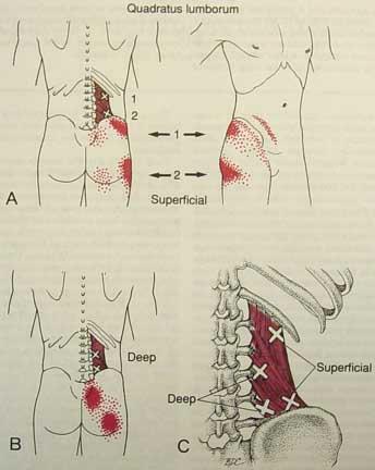 låsning i ryggen